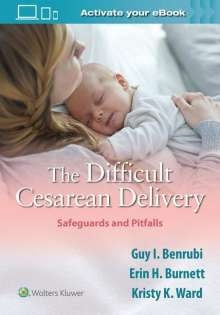 Guy I. Benrubi: The Difficult Cesarean Delivery: Safeguards and Pitfalls, Buch