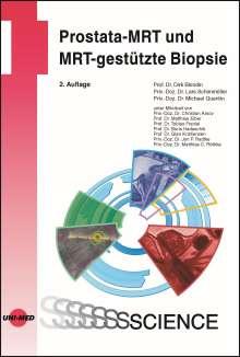 Dirk Blondin: Prostata-MRT und MRT-gestützte Biopsie, Buch